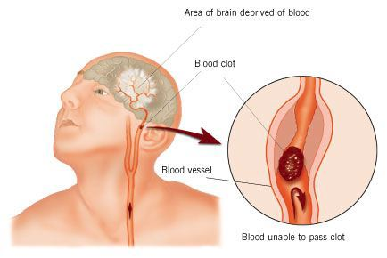 Blood Clots/Stroke